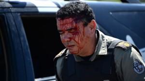 Policial ferido em manifestação pacífica, em Fortaleza.