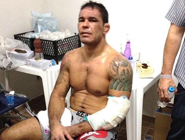 Minotauro com o braço enfaixado, após a derrota para Werdum. Foto: Reprodução/Twitter