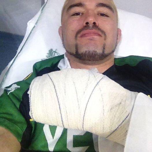 Jason após o procedimento cirúrgico. Foto: Arquivo Pessoal