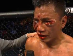Cung Le fica com rosto desfigurado após luta contra Bisping. Foto: reprodução Combate