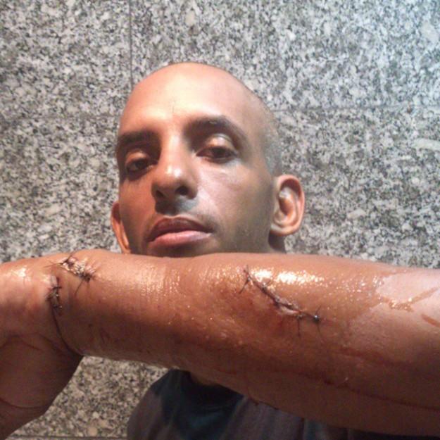 Flávio mostra os ferimentos nas redes sociais | Foto: reprodução/Facebook