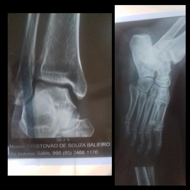 Raio-x confirmando a lesão no tornozelo, após a luta no Limo Fight. Foto: Arquivo Pessoal