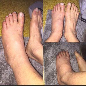 Imagens divulgadas por Caio, mostrando a situação dos pés do lutador após a lesão. Foto: Arquivo Pessoal